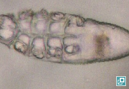 Micrograph of <em>Demodex gatoi</em> adult