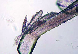 Micrograph of <em>Demodex</em> mites, adults and juvenile forms